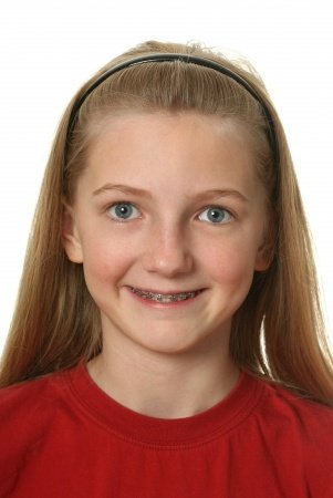 My Child Has (or is getting) Braces; Can She Still Play Her Band Instrument?
